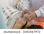 the real scene of cupping... | Shutterstock . vector #1052567972
