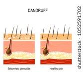 dandruff. seborrheic dermatitis ... | Shutterstock .eps vector #1052591702