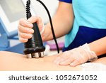 rf skin tightening  belly.... | Shutterstock . vector #1052671052