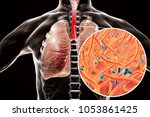 whooping cough bacteria... | Shutterstock . vector #1053861425