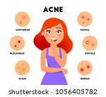 acne types infographic elements ... | Shutterstock .eps vector #1056405782