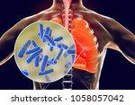 bacteria pneumonia  medical... | Shutterstock . vector #1058057042