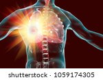 lung cancer treatment and... | Shutterstock . vector #1059174305
