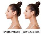 Comparison Of Female Nose Afte...