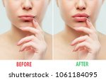 before and after lips filler... | Shutterstock . vector #1061184095