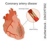 coronary artery disease.... | Shutterstock .eps vector #1063197302
