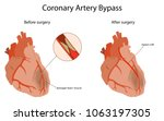 coronary artery bypass  medical ... | Shutterstock .eps vector #1063197305