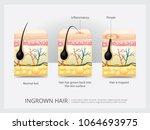 ingrown hair structure vector... | Shutterstock .eps vector #1064693975