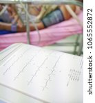 Small photo of Interpret ion and analyse electrocardiogram in intensive care patient, ecg printing from machine