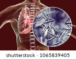 secondary tuberculosis in lungs ... | Shutterstock . vector #1065839405