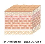 layer of damaged skin... | Shutterstock .eps vector #1066207355