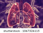 secondary tuberculosis in lungs ...   Shutterstock . vector #1067326115