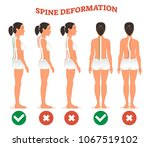 spine deformation types and... | Shutterstock .eps vector #1067519102