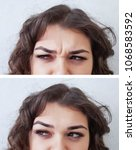 Small photo of forehead woman wrinkles before and after