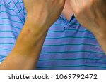Small photo of Injection bruises, Large bruise in the forearm