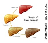 stages of liver damage. liver... | Shutterstock .eps vector #1071451652
