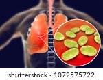 pneumonia caused by haemophilus ... | Shutterstock . vector #1072575722