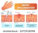 injury inflammation biological... | Shutterstock .eps vector #1072918598
