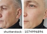 face man wrinkles before and... | Shutterstock . vector #1074996896