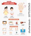trigger finger infographic... | Shutterstock .eps vector #1075150565