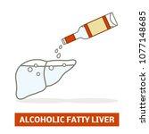 alcoholic fatty liver concept....   Shutterstock .eps vector #1077148685