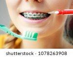 dentist and orthodontist...   Shutterstock . vector #1078263908
