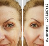 Small photo of face wrinkles woman before and after procedures