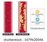 cholesterol in artery  health... | Shutterstock .eps vector #1079620046