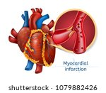 myocardial infarction. 3d... | Shutterstock .eps vector #1079882426