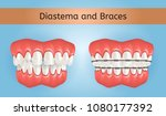 diastema and braces with... | Shutterstock .eps vector #1080177392