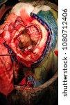 Small photo of Fronto-parietal Meningioma excision via Craniotomy