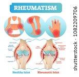 rheumatism medical health care... | Shutterstock .eps vector #1082209706