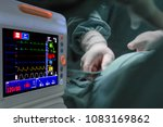 monitor heart rate for surgery... | Shutterstock . vector #1083169862