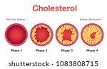 Cholesterol In Artery  Health...