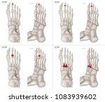 collection arthritis in long... | Shutterstock . vector #1083939602