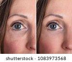 photo of anti aging procedures... | Shutterstock . vector #1083973568