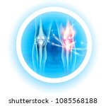 joint problems symbol ... | Shutterstock .eps vector #1085568188