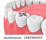 3d render of teeth with dental... | Shutterstock . vector #1085984945