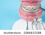 Small photo of orthodontic model and dentist tool - demonstration teeth model of varities of orthodontic bracket or brace