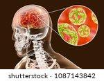 japanese b encephalitis ...   Shutterstock . vector #1087143842