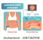 laparoscopic surgery medical... | Shutterstock .eps vector #1087282958