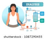 dialysis medical procedure... | Shutterstock .eps vector #1087290455