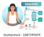 dialysis medical procedure... | Shutterstock .eps vector #1087290455