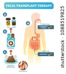 fecal transplant therapy ... | Shutterstock .eps vector #1088519825