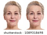 woman face before and after... | Shutterstock . vector #1089318698