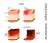 skin burn. four degrees of... | Shutterstock .eps vector #1094115362