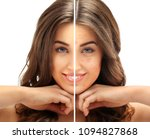 post acne marks  treating acne... | Shutterstock . vector #1094827868