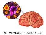 viral meningitis and... | Shutterstock . vector #1098015308