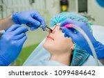 laser vaporization of nasal... | Shutterstock . vector #1099484642