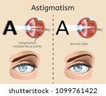 astigmatism vector diagram with ... | Shutterstock .eps vector #1099761422